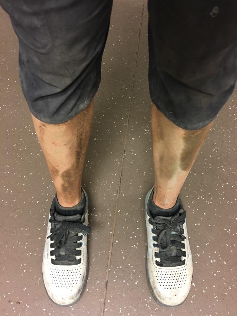 My legs at the end of day 3.