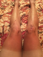 State of my legs after 6 weeks on the trail.